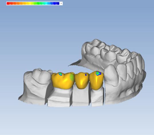 Intraoralscanner Digitaler Zahnabdruck