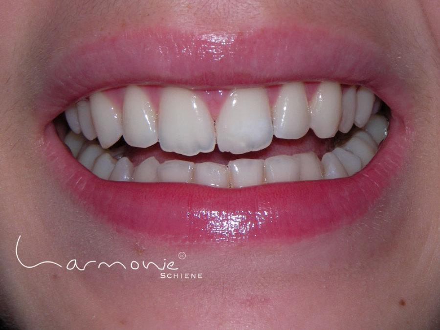 Unsichtbare Zahnspange Ergebnis Nürnberg