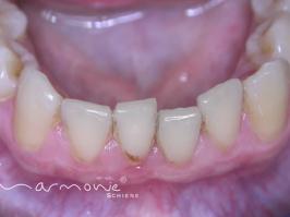 Unterkiefer unsichtbare Zahnspange vor Behandlung