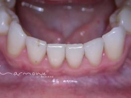Unterkiefer unsichtbare Zahnspange nach Behandlung
